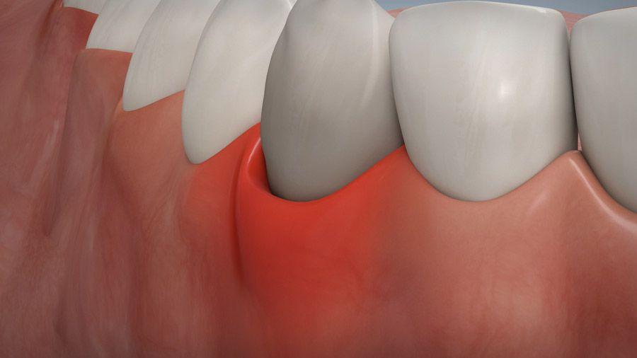 Parodontitisbehandlung